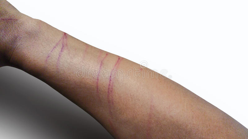 Kattenkras op uw huid royalty-vrije stock afbeelding