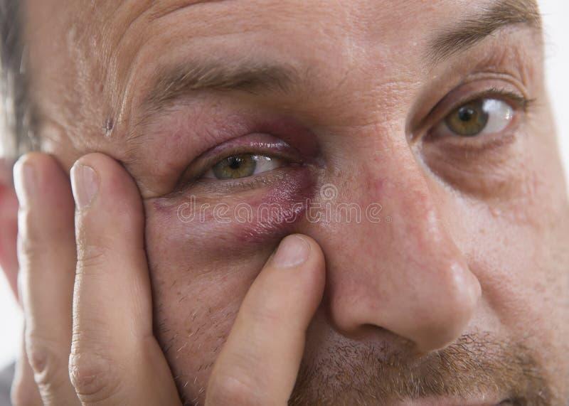 Kaukasisches männliches emotionales Porträt von mittlerem Alter mit einer wirklichen Quetschung lizenzfreie stockbilder