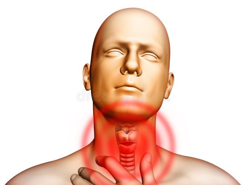 Keelpijn stock illustratie