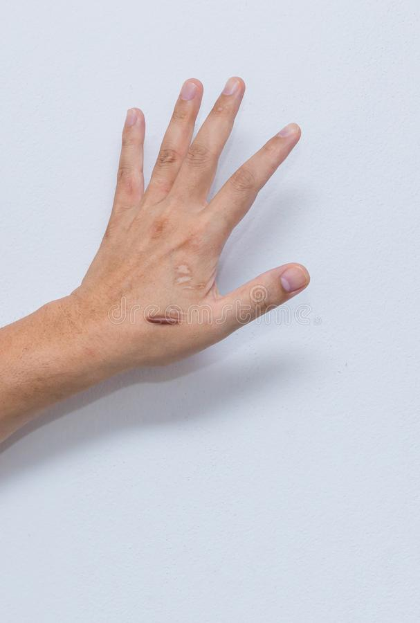 Keloid scar Hypertrophic Scar on man hand skin after accident. keloidal scar on wrist skin cause by surgery in car accidental ,. Is a formation of a type of stock images