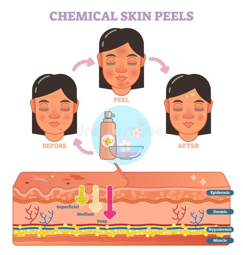 Kemisk hud skalar vektorillustrationdiagrammet stock illustrationer