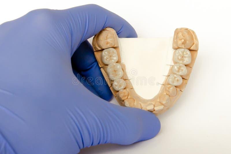 Keramisch-Metallbrücken auf einem Gipsmuster in Händen eines Zahnarztes lizenzfreies stockfoto