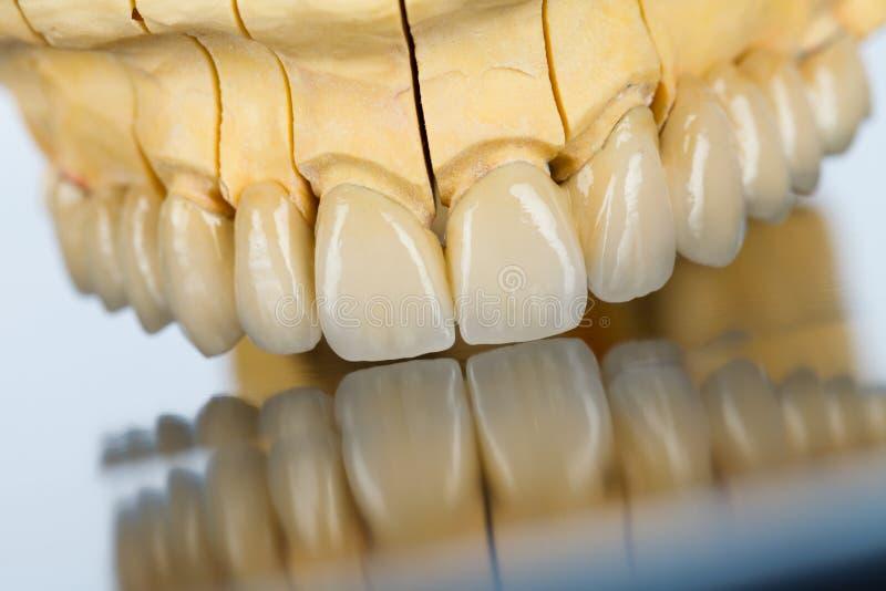 Keramische Zähne - Zahnbrücke stockbilder