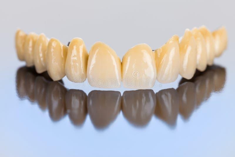 Keramische Zähne - Zahnbrücke stockbild