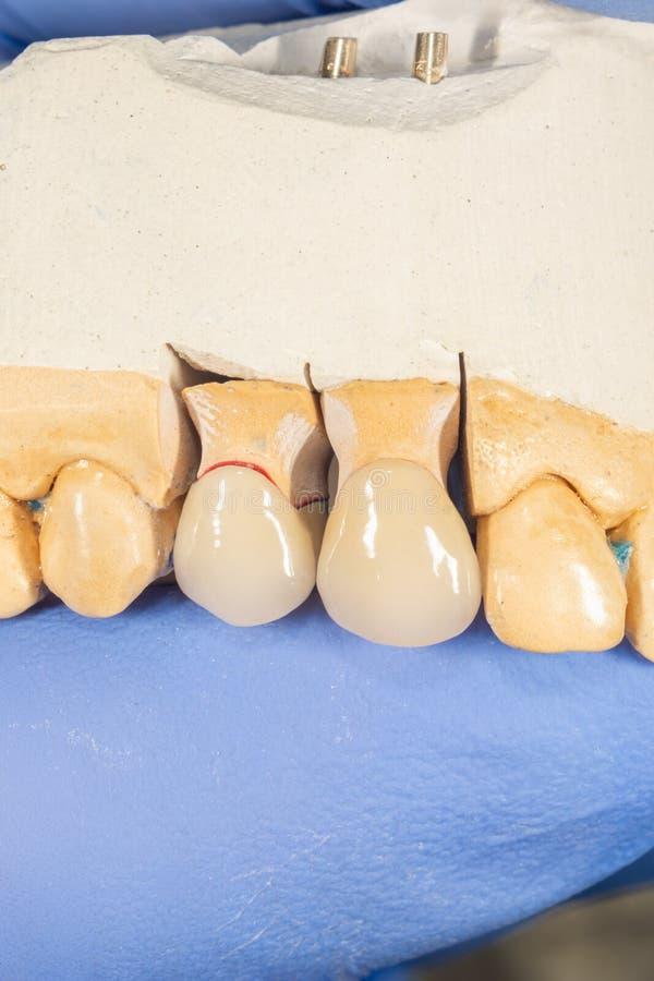 Keramische Zahnkrone der Nahaufnahme auf einem Gipsmodell von Zähnen in der Hand des Zahnarztes Die Arbeit eines Zahntechnikers stockfoto