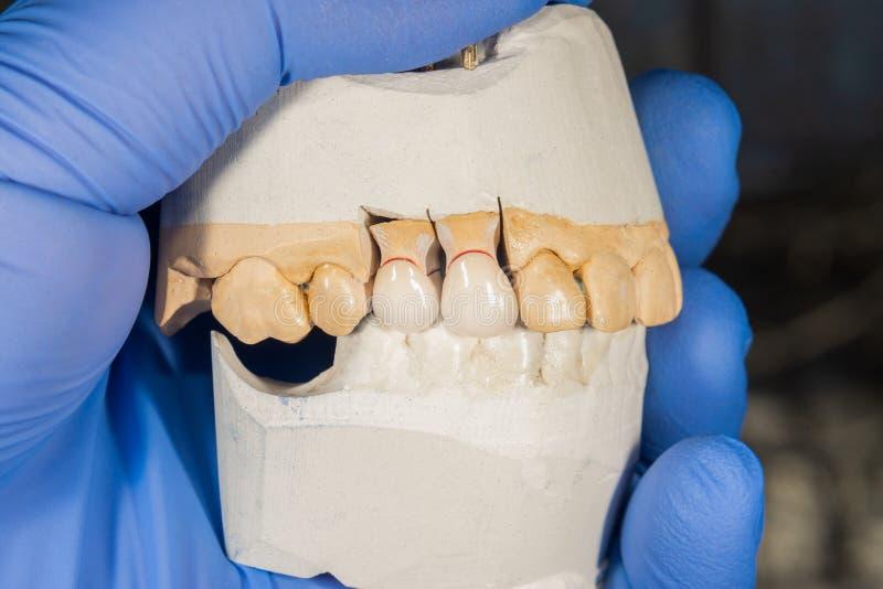 Keramische Zahnkronennahaufnahme auf einem Gipsmodell Zahnmedizinische Prothese stockbild