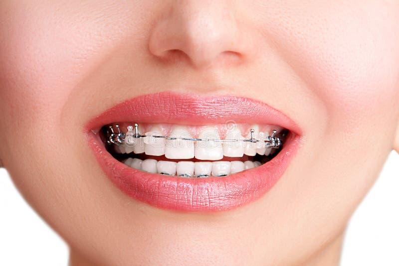 Keramisk Closeup och metallhänglsen på tänder Härlig kvinnlig Smil arkivbilder