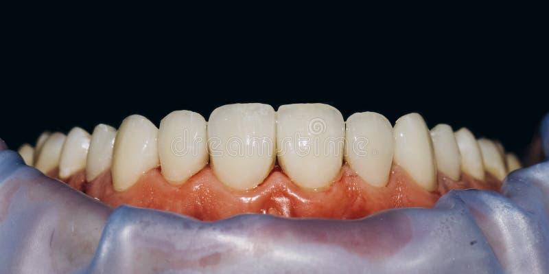 Keramiska främre kronor, svart bakgrund 8 tand- fanér för enheter arkivfoton