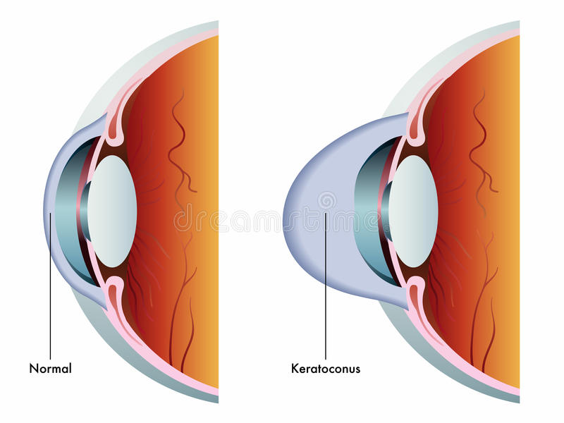 Keratoconus vector illustration