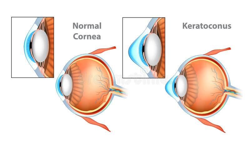 Keratoconus KC Cornea. Normal Cornea and Keratoconus KC Cornea royalty free illustration