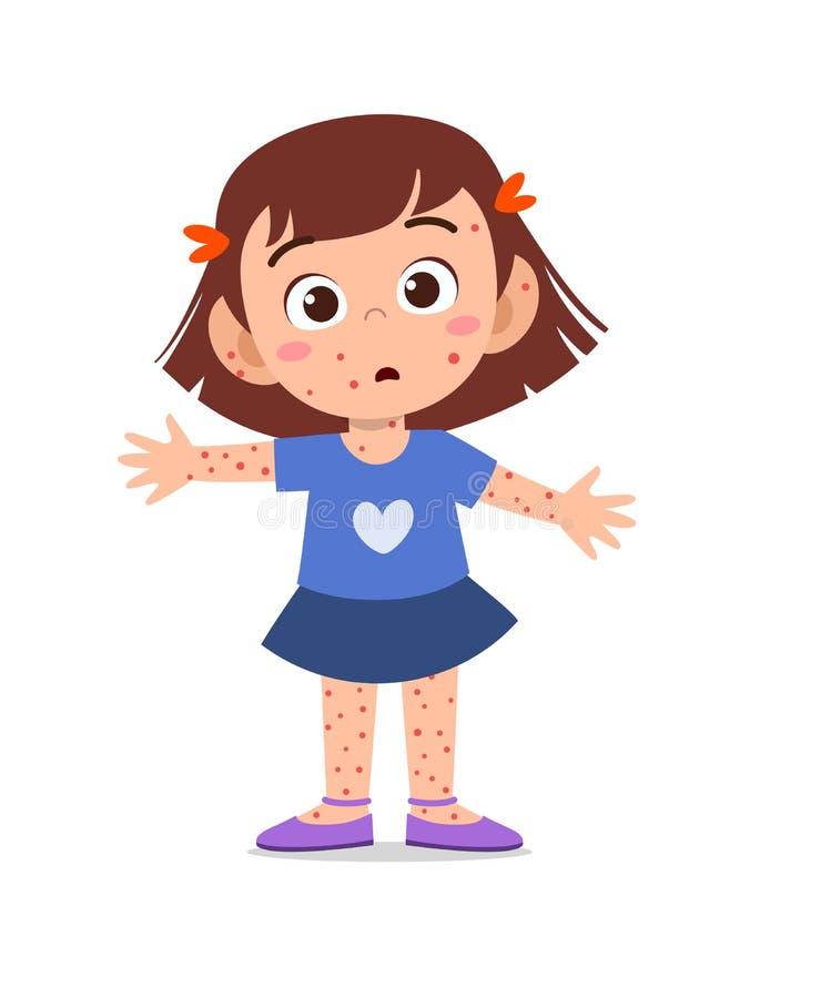 kid girl having chicken pox  royalty free illustration