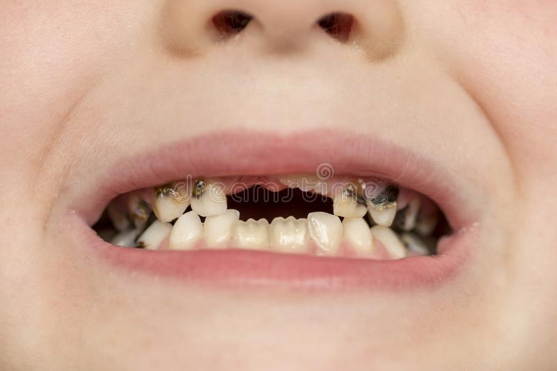 Kid patient open mouth showing cavities teeth decay. Close up of unhealthy baby teeth. Dental medicine and healthcare.  royalty free stock photography