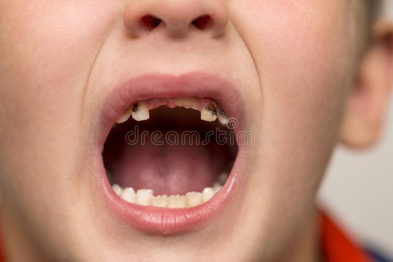 Kid patient open mouth showing cavities teeth decay. Close up of unhealthy baby teeth. Dental medicine and healthcare.  royalty free stock photo