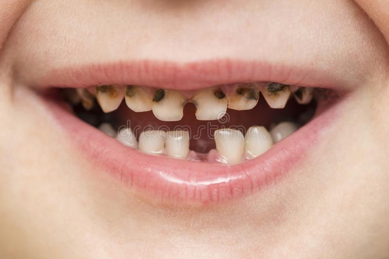 Kid patient open mouth showing cavities teeth decay. Close up of unhealthy baby teeth. Dental medicine and healthcare - human stock image