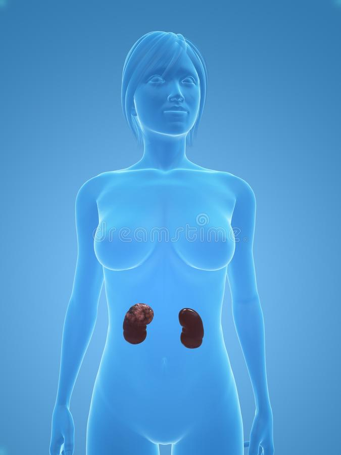 Download Kidney Cancer Royalty Free Stock Photo - Image: 10245185