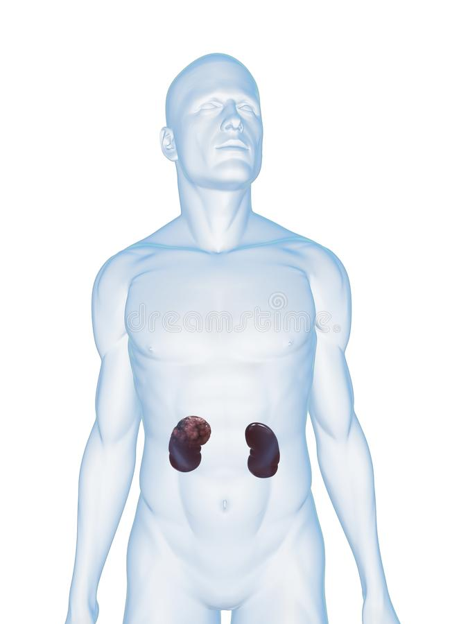 Kidney cancer stock illustration