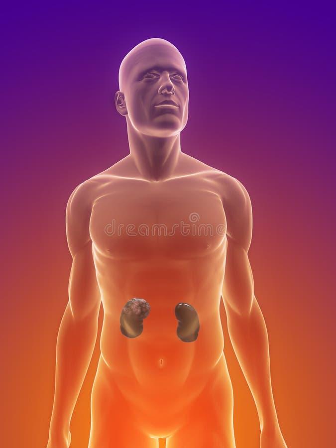 Download Kidney cancer stock illustration. Illustration of transparent - 14143197