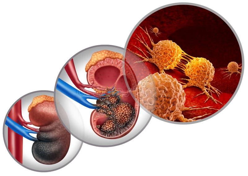 Kidney Cancer Disease vector illustration