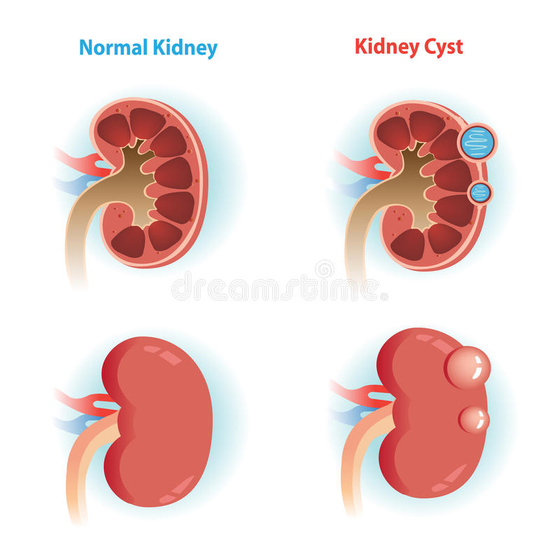 Kidney Cyst vector illustration