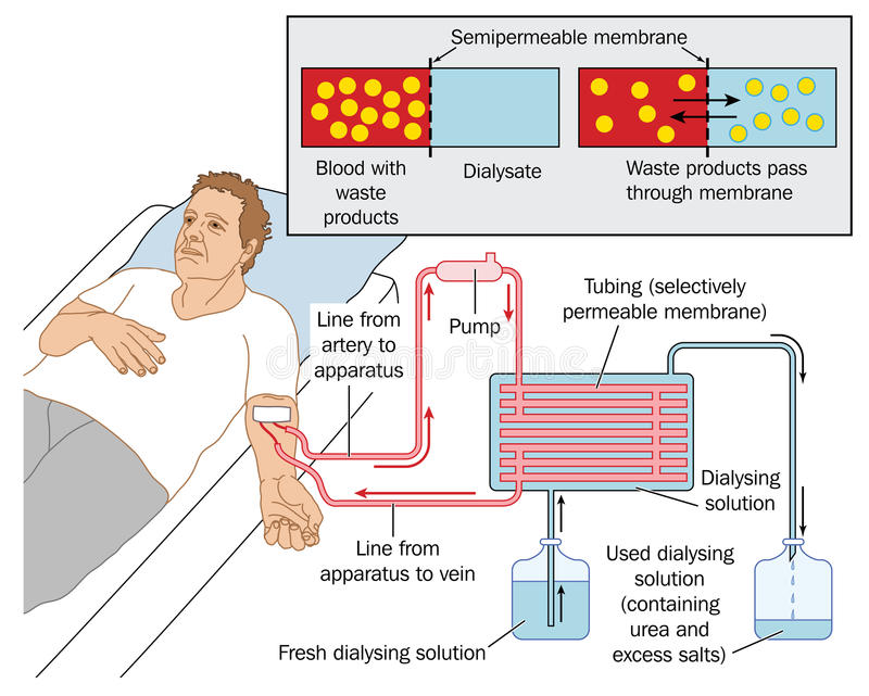 Kidney dialysis. How blood dialysis works, showing a patient connected to a blood pump, semipermeable membrane and dialysing solution. Created in Adobe vector illustration