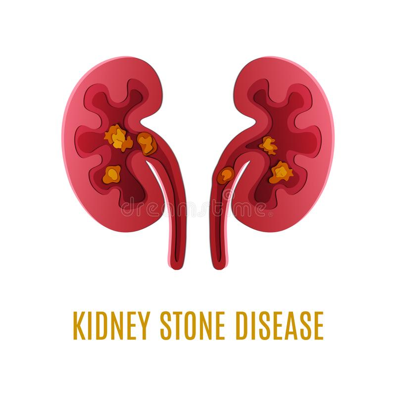 Kidney stone disease paper cut 3D poster royalty free illustration