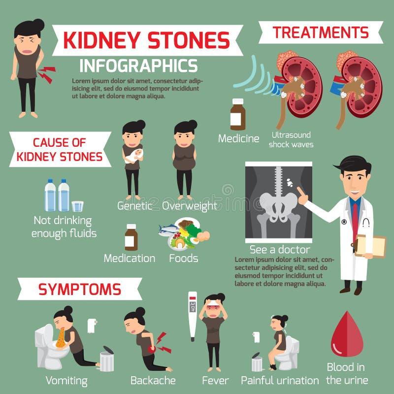Kidney stone infographic. Detail medical set elements vector illustration