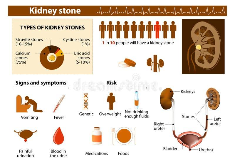 Kidney stone. Medical Infographic set elements and symbols for design royalty free illustration