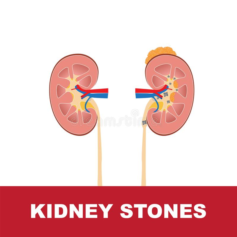 Kidney Stones Vector Illustration Stock Vector - Illustration of ...