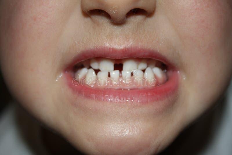 Kids teeths - closeup look stock image