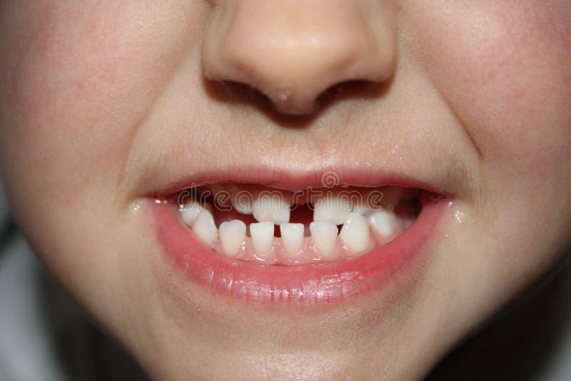 Kids teeths - closeup look stock photography