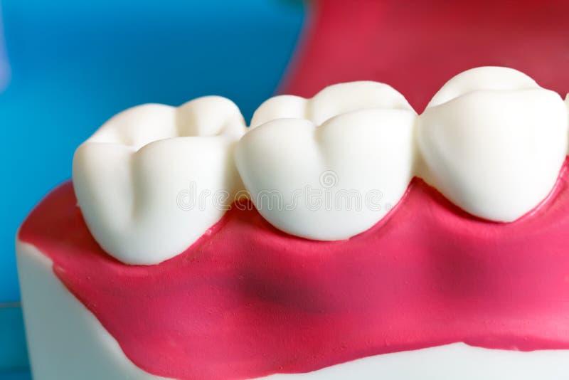 Großzügig Gebrochene Zähne Im Kiefer Verdrahtet Zeitgenössisch - Die ...