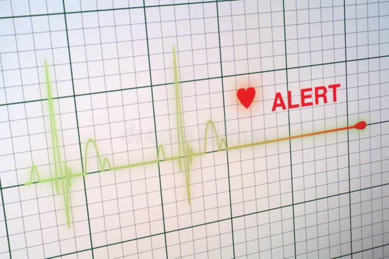 Kierowych rytmów kardiogram na monitorze zdjęcie stock