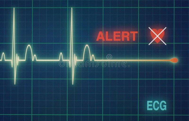 Kierowych rytmów kardiogram na monitorze zdjęcia royalty free