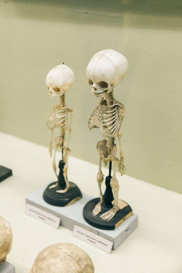 KIEV, UCRANIA - 16 DE JUNIO DE 2018: Museo Nacional de ciencias naturales de Ucrania Esqueleto del bebé, niño muerto Costillas an foto de archivo libre de regalías
