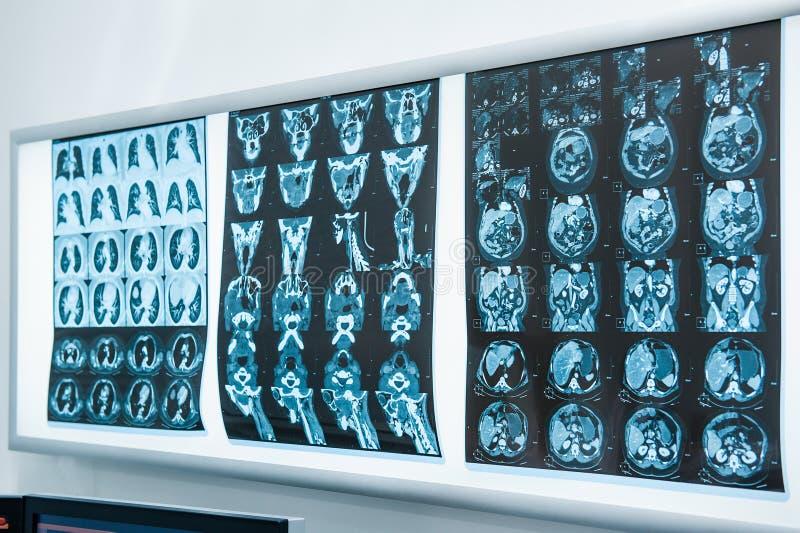Kilka rezonansowy zobrazowanie MRI mózg Selekcyjna ostrość zdjęcia stock