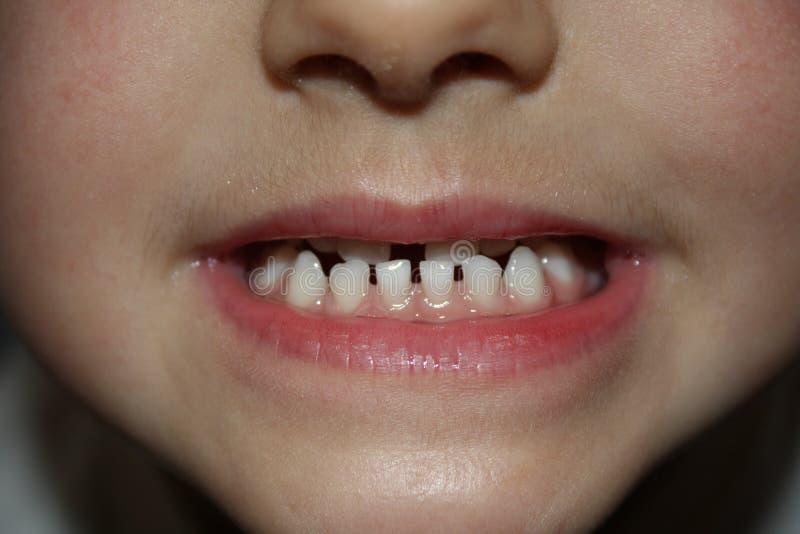 Kind-teeths - Nahaufnahmeblick stockfotografie