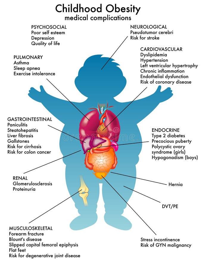 Kinderjarenzwaarlijvigheid stock illustratie