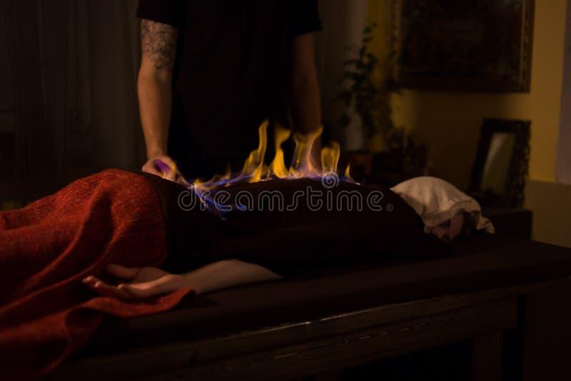 Kinesisk brandmassage och terapi royaltyfria foton