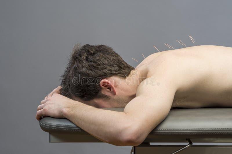 Kinesisk medicin som gör akupunktur royaltyfria foton