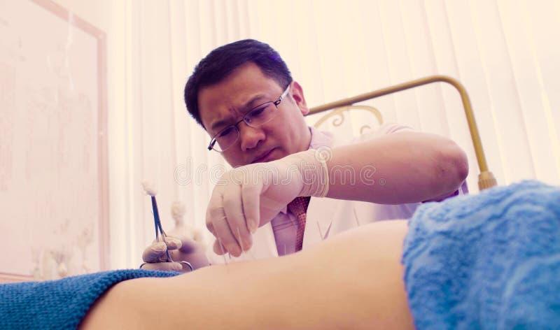 Kinesisk terapeut som sätter visare till patienten royaltyfria bilder