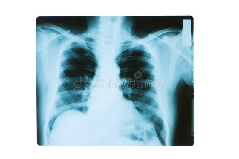Klatek piersiowych kości radiologiczny wizerunek zdjęcie royalty free