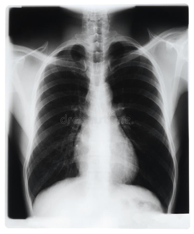 klatka piersiowa promień x fotografia stock
