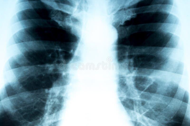 klatka piersiowa ray x obrazy royalty free
