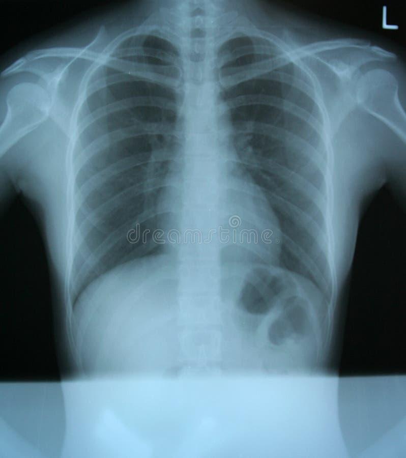 klatka piersiowa ray x obrazy stock