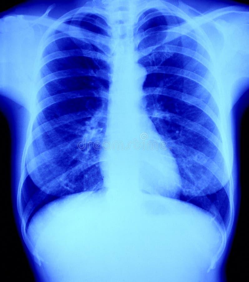 klatka piersiowa słucha płuca normalnego prześwietlenia promień x fotografia stock