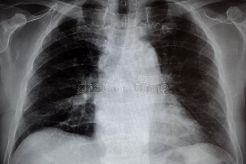 Klatki piersiowej promieniowanie rentgenowskie fotografia royalty free
