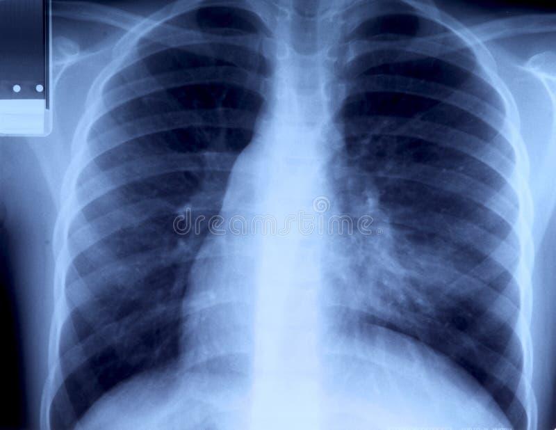 klatki piersiowej prześwietlenie zdjęcia stock