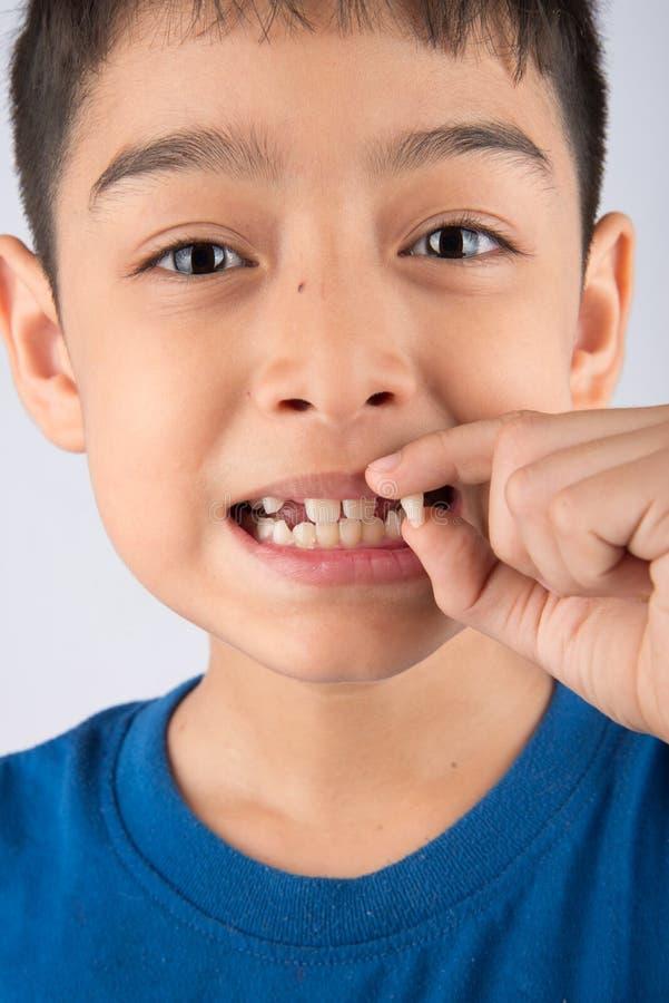 Kleiner Junge, der Milchzähnen den zahnlos Abschluss oben wartet auf neue Zähne zeigt lizenzfreie stockfotografie