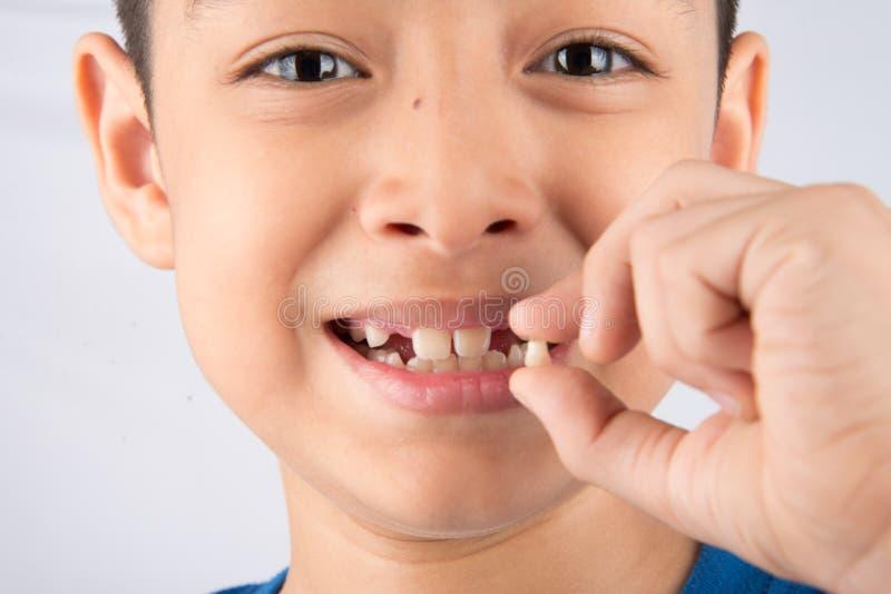 Kleiner Junge, der Milchzähnen den zahnlos Abschluss oben wartet auf neue Zähne zeigt stockbild