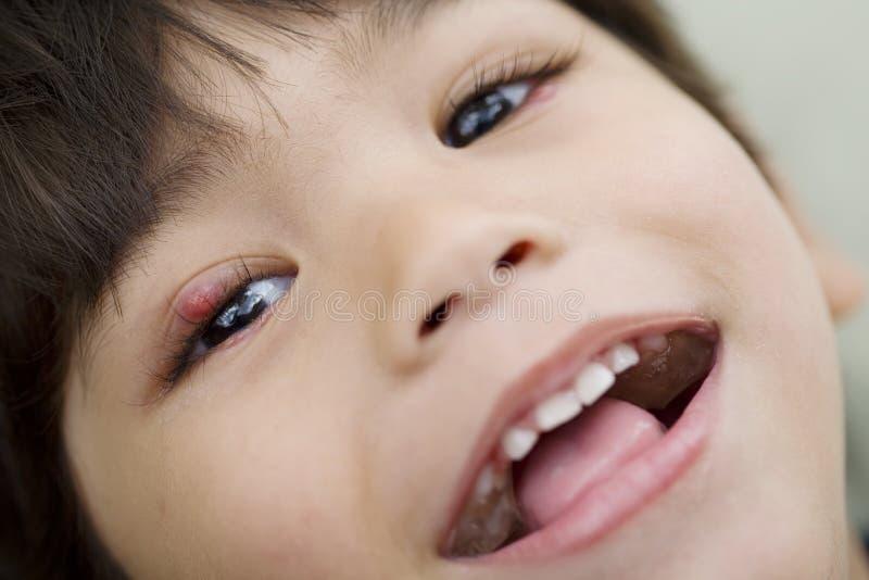 Kleiner Junge mit einem Schweinestall auf dem Augenlächeln stockbild